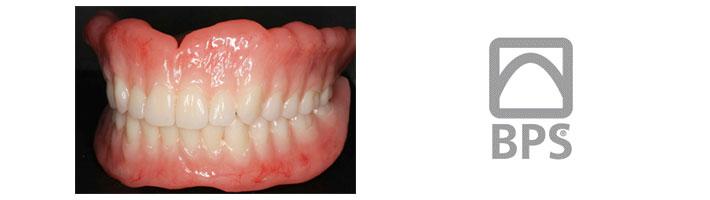 BPS義歯