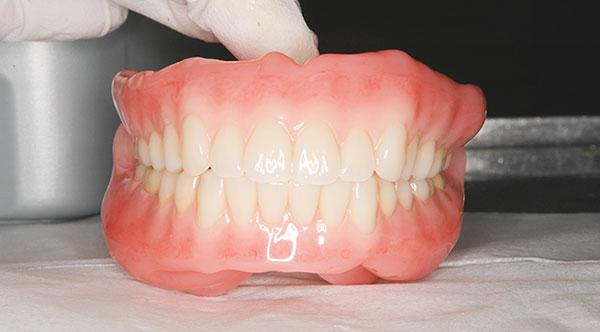 総 若い 入れ歯 に の