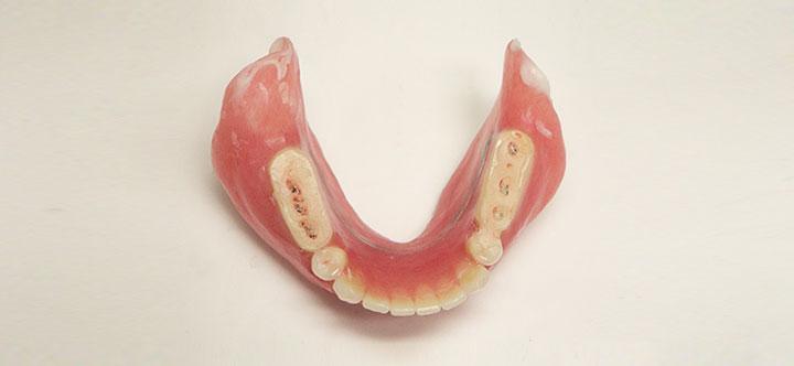 治療用義歯